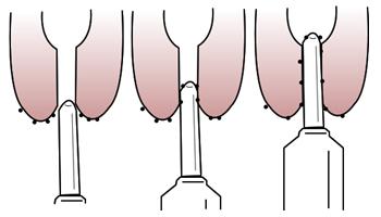 Micro-organismo são reintroduzidos na glândula mamária quando não há prévia desinfecção da ponta do teto